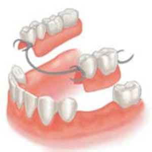Dentures in Woodbridge  Contact your community dentist today!